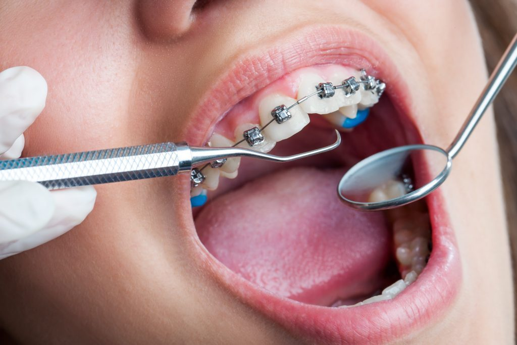 Diş Hekimliği Bölümü Tez, Ödev, Makale, Proje Yaptırma
