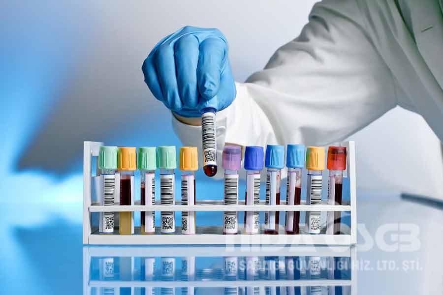 Ayırma Modları – Biyokimya ve Moleküler Biyolojide Laboratuvar Teknikleri – Laboratuvar Ödevleri – Lab Ödevleri – Kimya Mühendisliği – Kimya Ödev Yaptırma Ücretleri